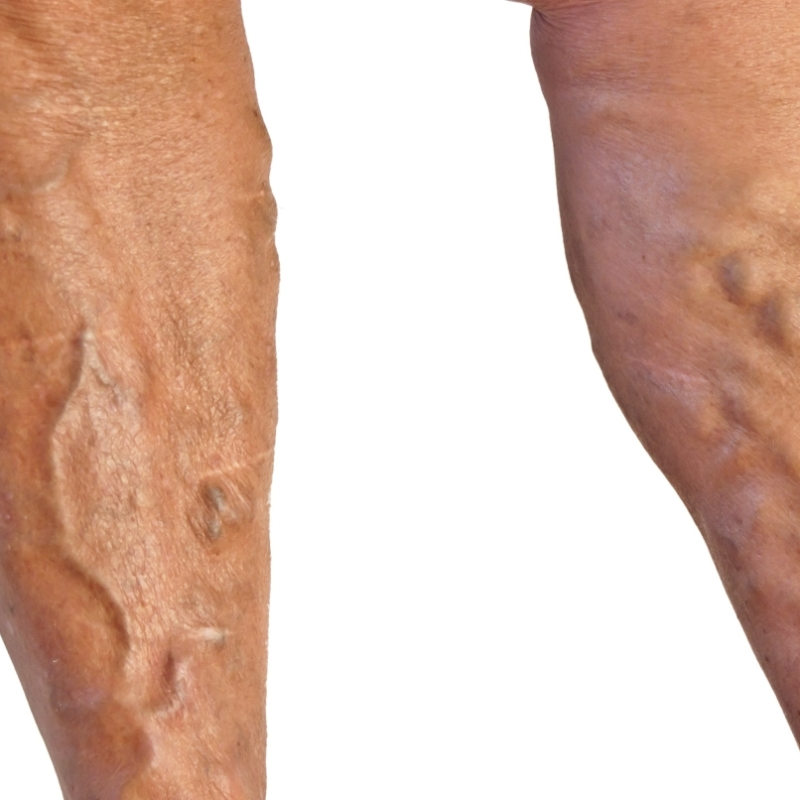 Come lottare con cellulite se varicosity