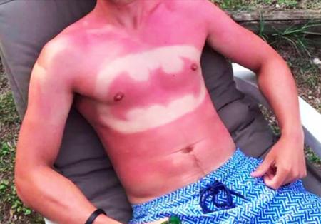 Dagli Stati Uniti d'America arriva l'ennesima idiozia: la Sunburn Art