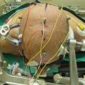 Intervento di neurochirurgia