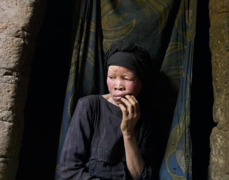 Mwatatu Musa, tanzaniana albina vittima di violenze.