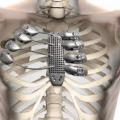 Sterno e costole in titanio riprodotti in 3D
