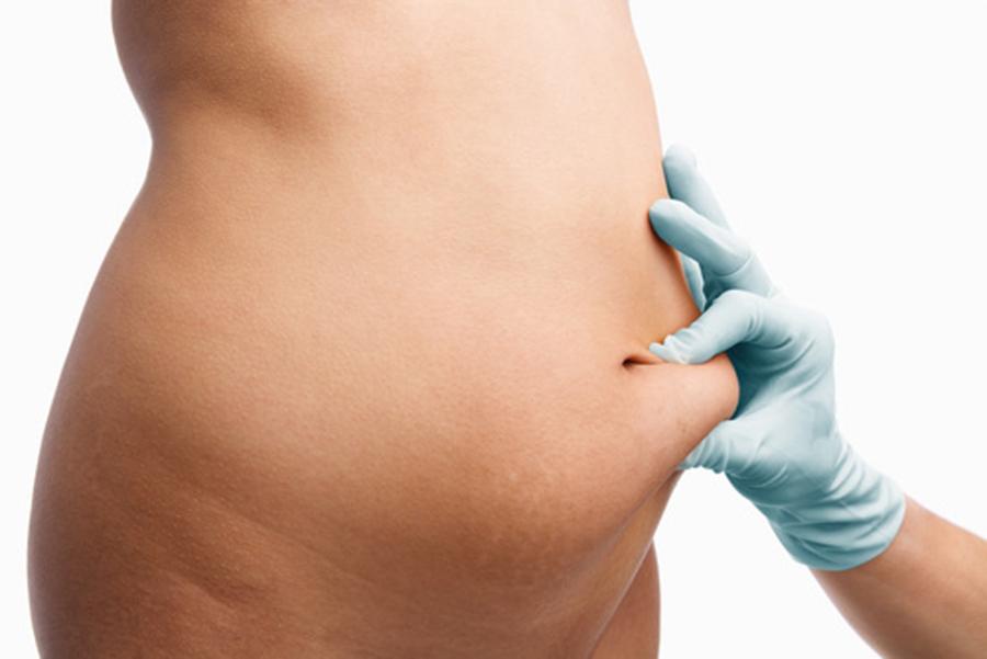 come ridurre il grasso sottocutaneo addominale